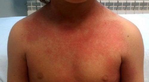 Çocuklarda Kızıl Hastalığı: Bilmeniz Gereken Her Şey