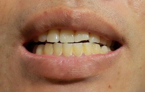 Diş Lekeleri