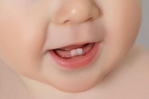 Bebeklerin diş çıkarması