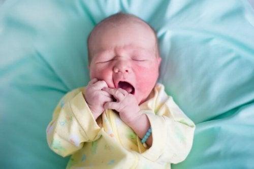 cilt hastalıklı bebek