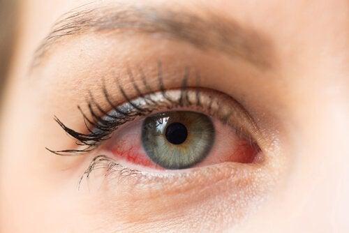 Çocuklarda Pembe Göz Hastalığının Yayılmasını Önleyin