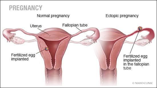 yumurtalıklar ve rahim