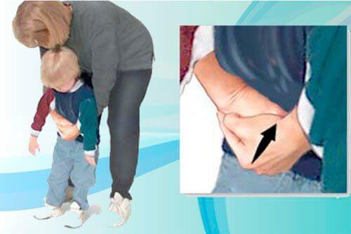 heimlich manevrası ile ilkyardım uygulaması