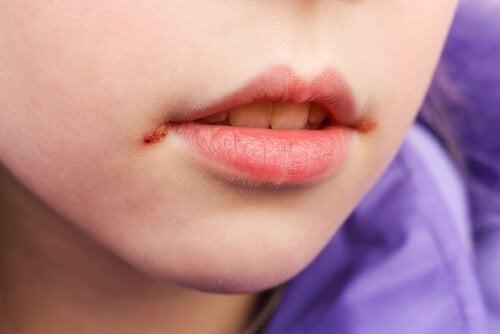 Çocuklarda Ağız Yaraları: Nedenleri ve Tedavisi