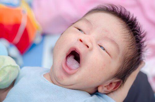 Oral Pamukçuk: Nedenleri, Belirtileri ve Önlenmesi