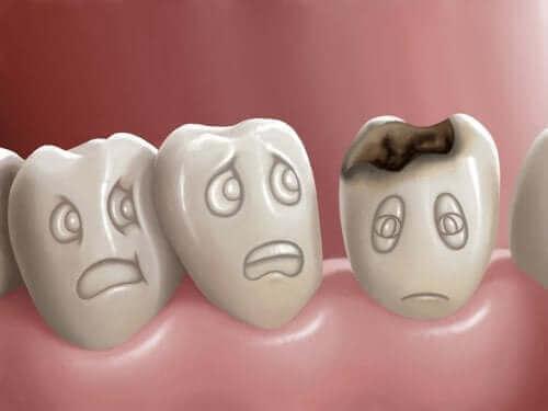 Diş Çürükleri Nedir ve Nasıl Önlenir?