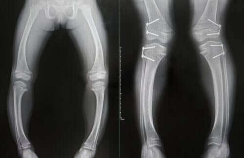 Raşitizm röntgeni