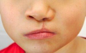 anomali tavşan dudağı