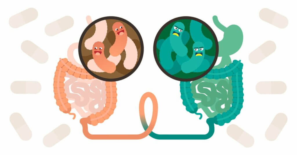 Fekal Transplantasyon Nedir?