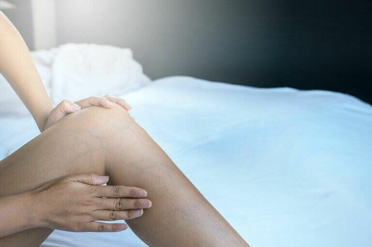 Hamilelikte Varisli Damarlar Nasıl Ortadan Kaldırılır?