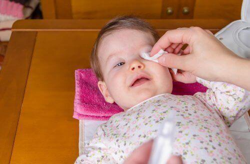 Bebeklerde Konjonktivit: Nasıl Tedavi Edilir?