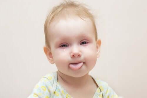 kırmızı gözlü bebek konjonktivit