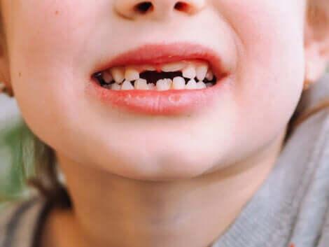 süt dişlerini gösteren çocuk