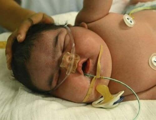 dünyanın en büyük bebeği