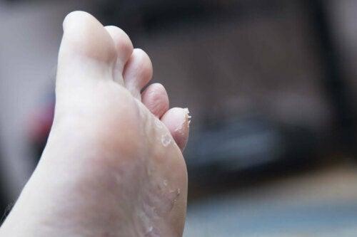 ayak tabanında soyulma