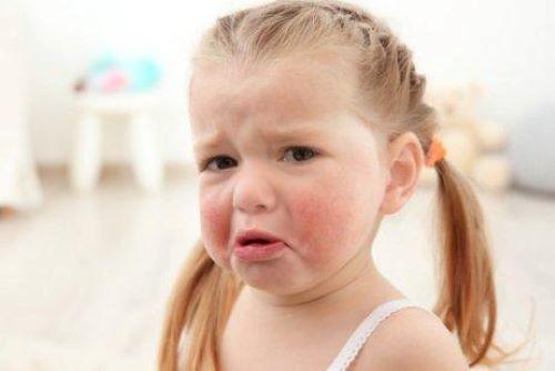 Çocuklarda lateks alerjisi ve göz nezlesi