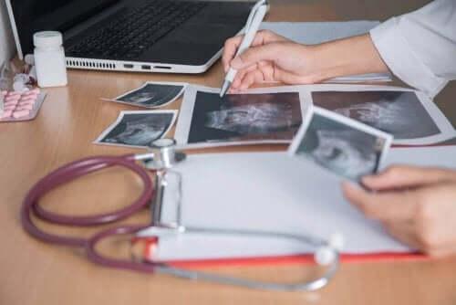 ultrason resimlerini incelemek
